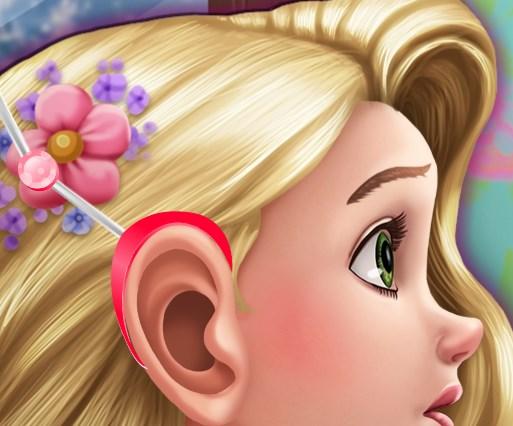 Rapunzel Ameliyat